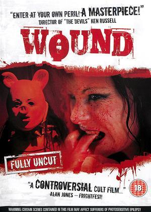 Rent Wound Online DVD Rental