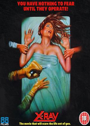 Rent X-Ray (aka Hospital Massacre) Online DVD Rental