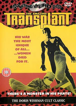 The Amazing Transplant Online DVD Rental