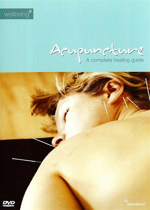 Rent Acupuncture Online DVD Rental