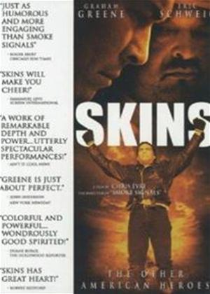 Rent Skins Online DVD Rental